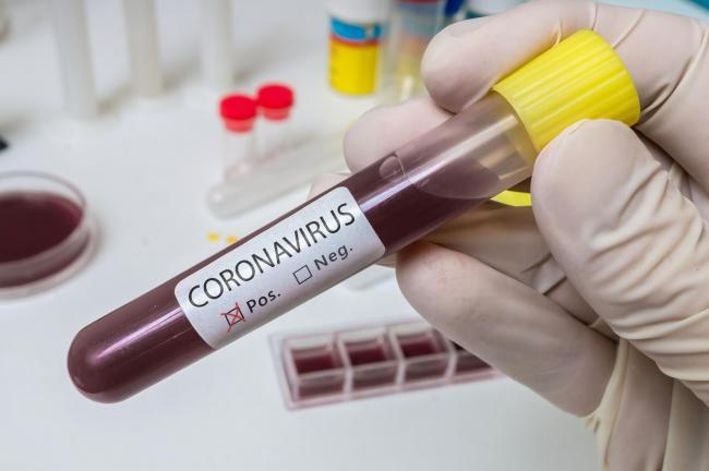 Number of new coronavirus cases in Halton exceeds 200 in a week