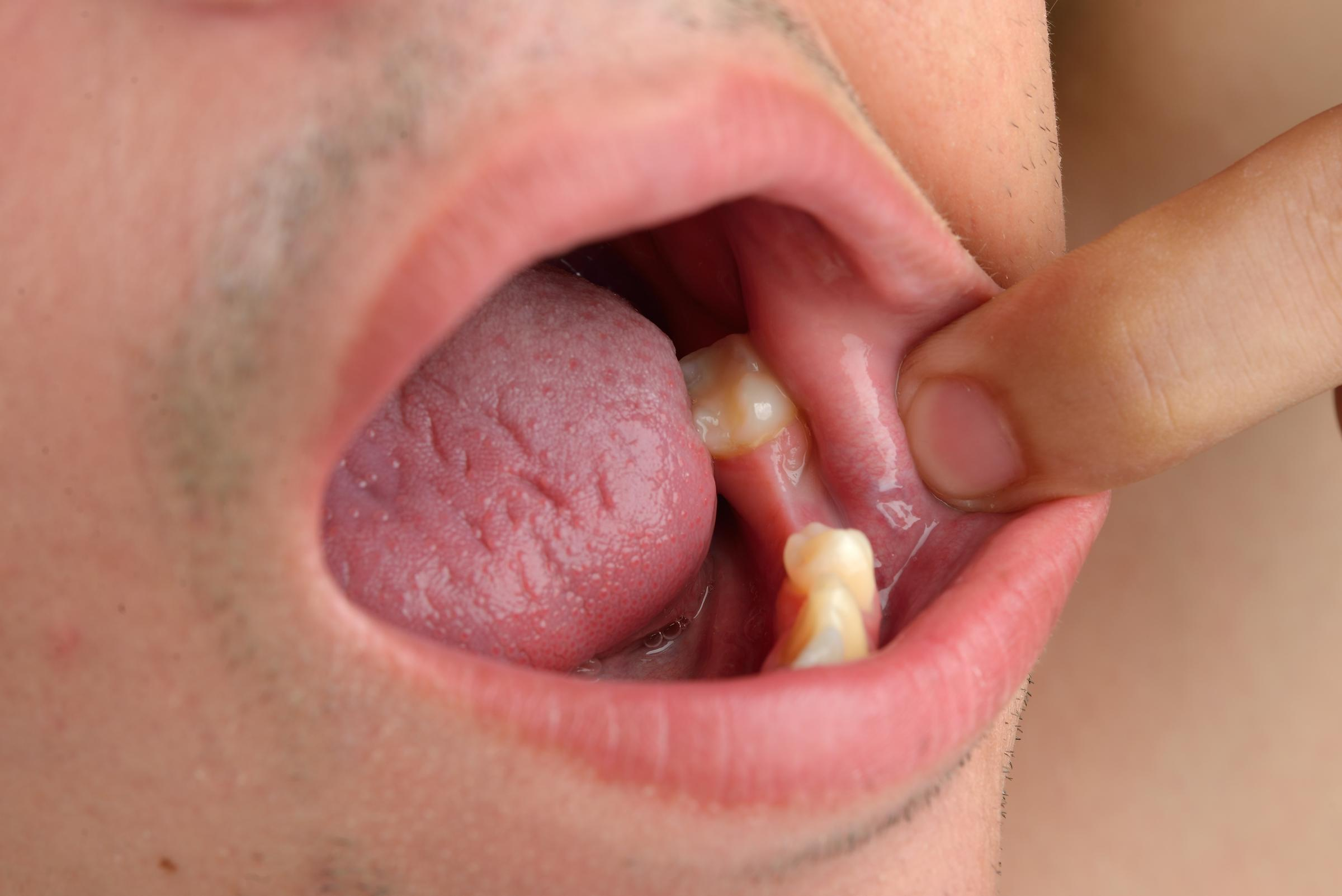 Runcorn patients top of table for tooth decay